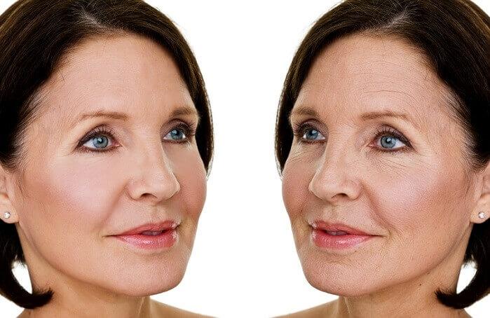 Căng da mặt bằng chỉ có thể gây ra rủi ro nếu bạn thực hiện ở những địa chỉ thiếu uy tín