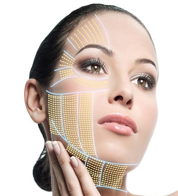 Lợi ích khi căng da mặt bằng chỉ vàng