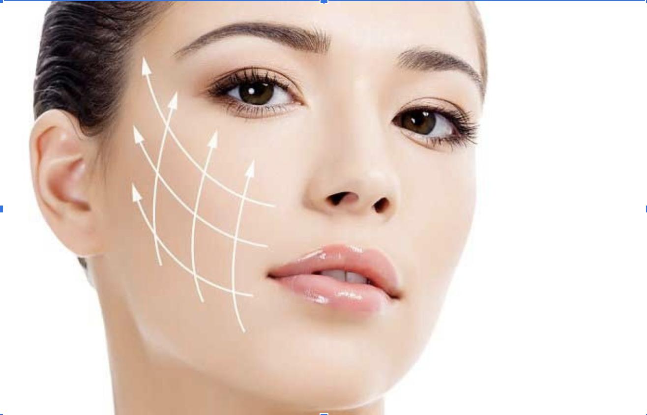 Căng da mặt bằng chỉ vàng giữ được khoảng 5 năm
