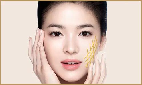 Công nghệ căng da mặt bằng chỉ vàng 24k
