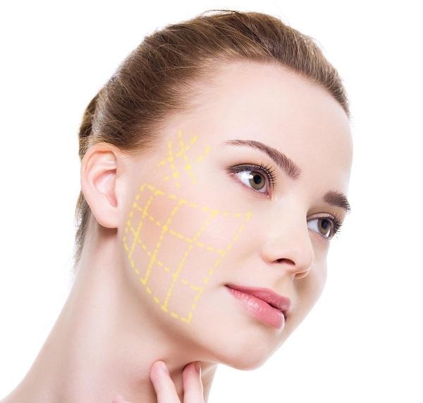 Sử dụng công nghệ căng da mặt bằng chỉ này mang đến nhiều ưu điểm vượt trội