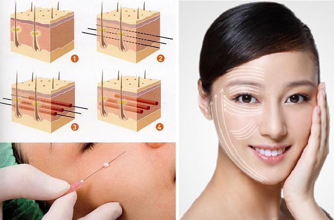 Căng da mặt là phương pháp trẻ hóa không gây đau đớn nếu bạn chọn địa chỉ uy tín
