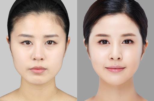 Tác dụng của căng da mặt nội soi