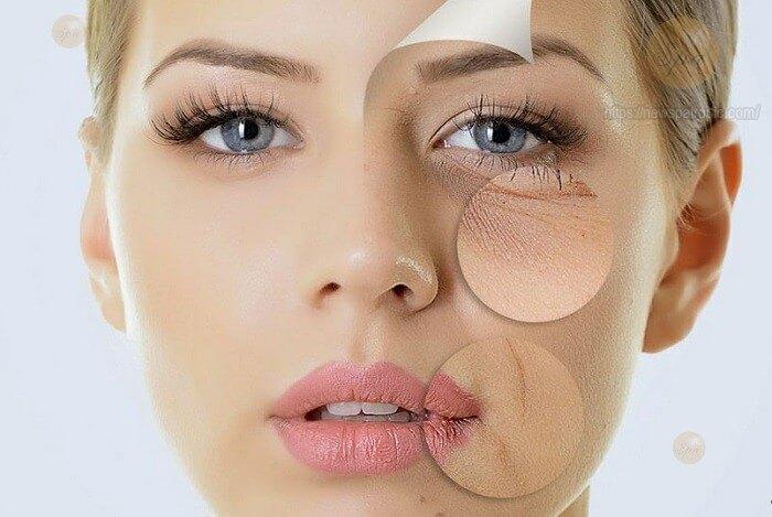 Đối tượng nào nên thực hiện căng da mặt nội soi