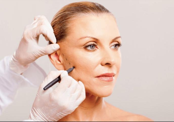 Không phải đối tượng nào cũng có thể thực hiện phương pháp căng da mặt nội soi