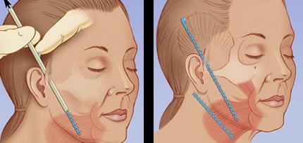Căng da mặt nội soi có tốt không?