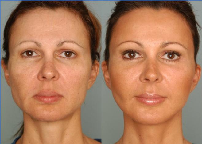 Trẻ hoá làn da bằng phương pháp căng da mặt có hiệu quả bao lâu?