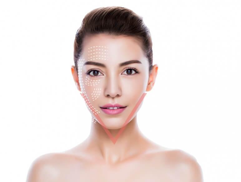 Bạn nên tìm hiểu các công nghệ thực hiện căng da mặt trước khi lựa chọn địa chỉ