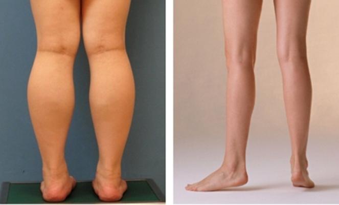 Không phải bất kỳ đối tượng nào cũng có thể hút mỡ bắp chân