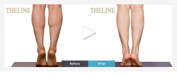 Hút mỡ bắp chân mang lại hiệu quả cao khi sử dụng