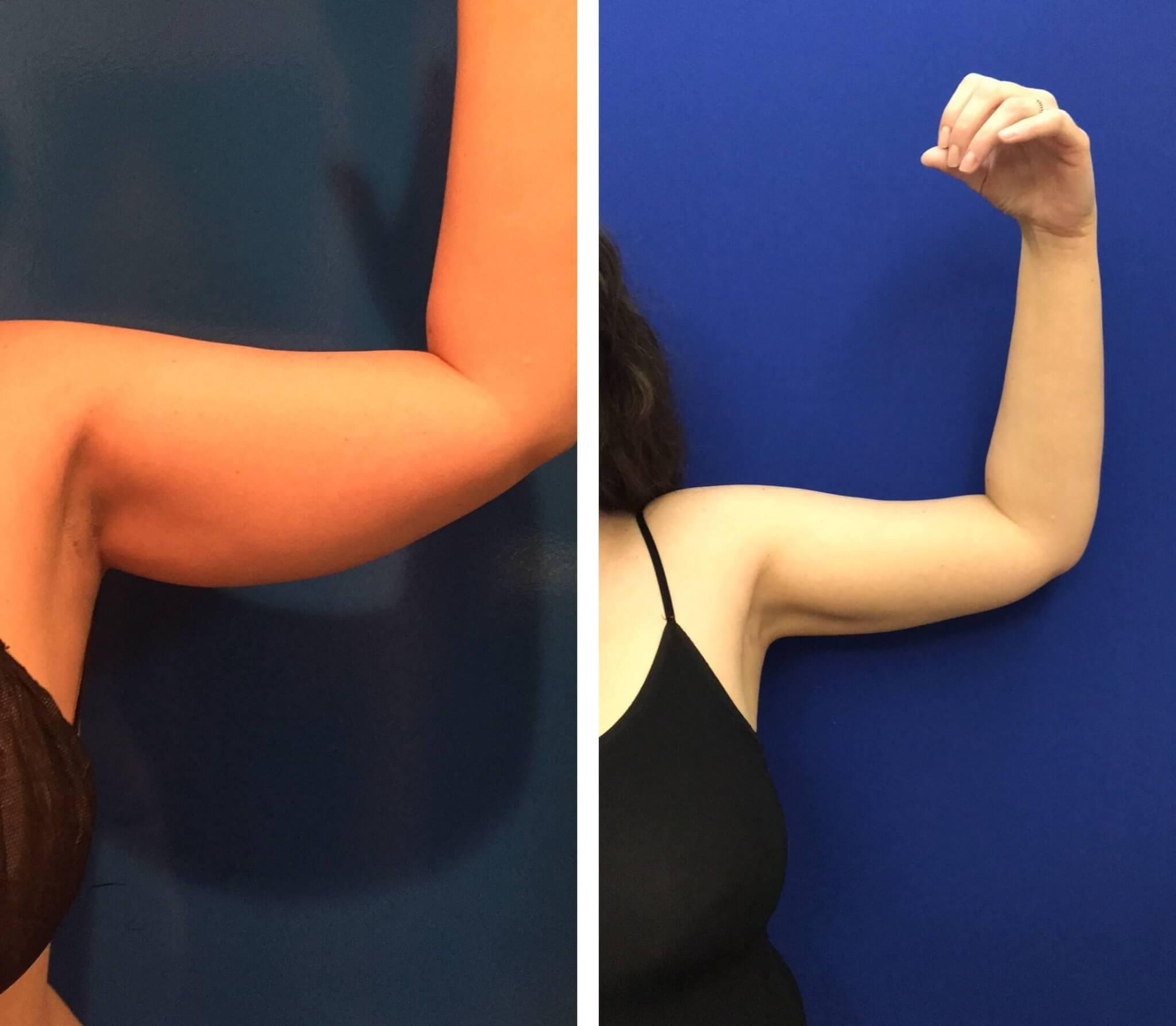 Thực hiện hút mỡ giúp bạn có được cánh tay thon gọn