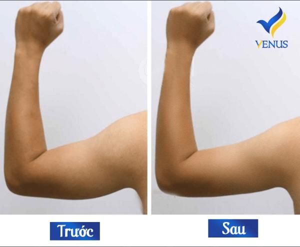 Hình ảnh của khách hàng trước và sau khi thực hiện hút mỡ tại Venus