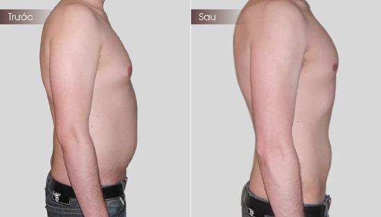Hút mỡ bụng ở nam giới được thực hiện nhanh chóng