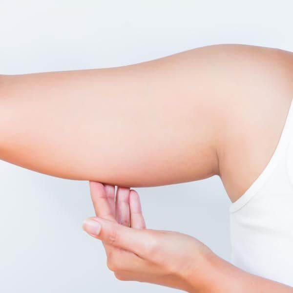 Hút mỡ cánh tay có nguy hiểm không?