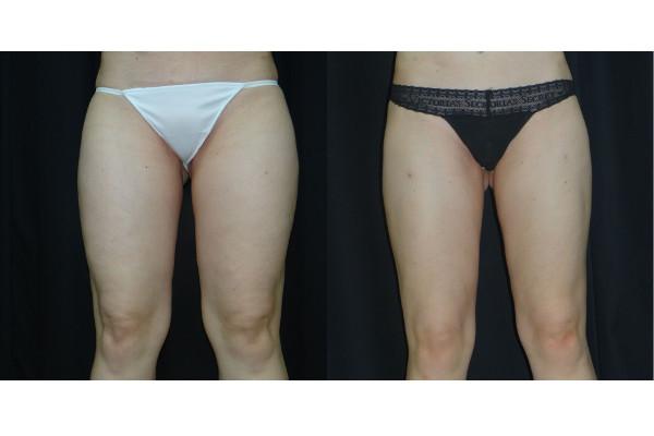 Hút mỡ đùi không phẫu thuật là phương pháp được lựa chọn nhiều hiện nay