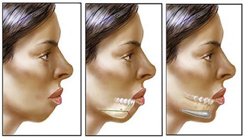 Phương pháp phẫu thuật độn cằm Vline