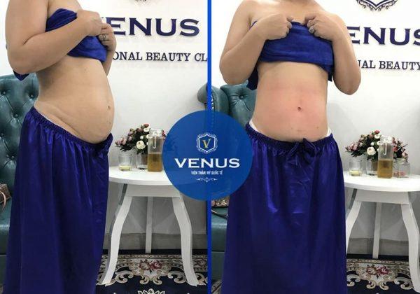 Hiệu quả hút mỡ bụng của khách hàng tại Venus