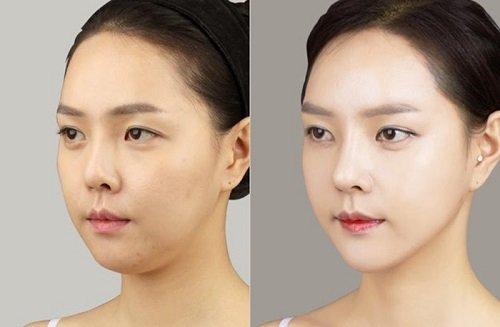 Nâng cơ mặt với chỉ tơ tằm chỉ duy trì hiệu quả được 3-5 năm