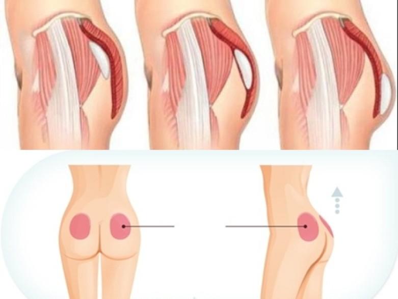 Quy trình nâng mông diễn ra đúng tiêu chuẩn của bộ Y tế