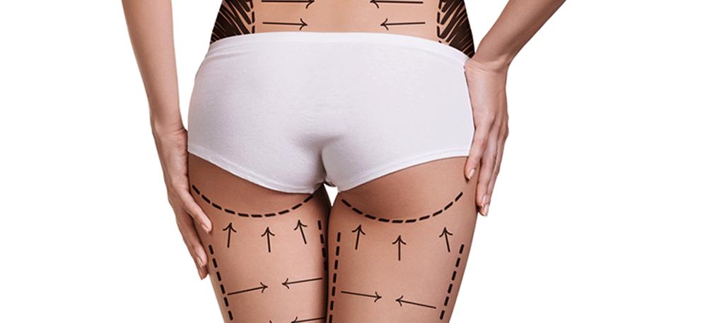 Nâng mông giúp cho vòng 3 được căng tròn, đầy đặn hơn