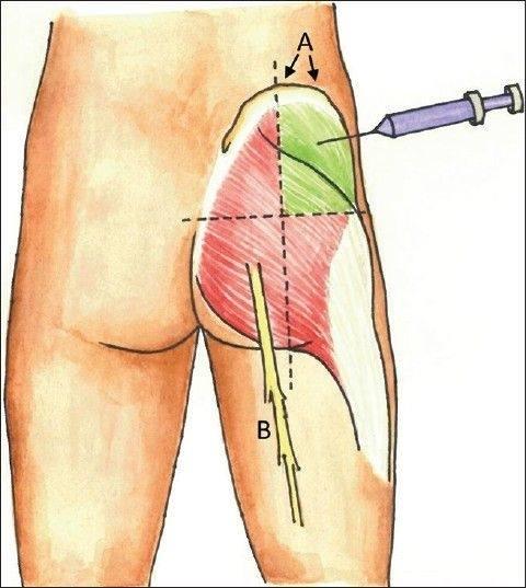 Tay nghề bác sĩ ảnh hưởng đến hiệu quả cũng như độ an toàn khi nâng mông