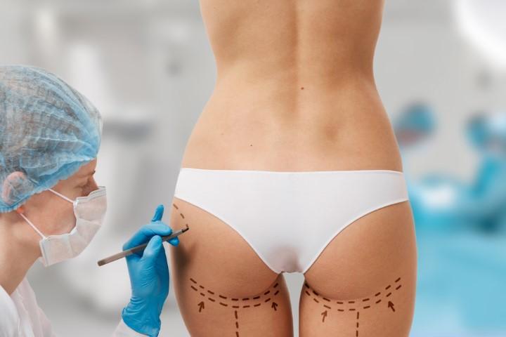 Venus là địa chỉ mông mông uy tín được nhiều khách hàng, ngôi sao nổi tiếng lựa chọn