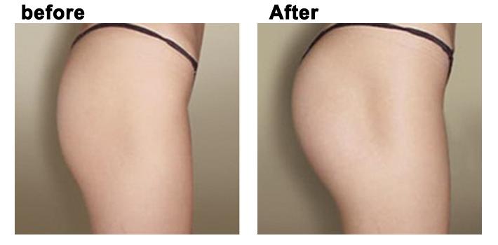 Hiệu quả nâng mông mang lại căng tròn, tự nhiên