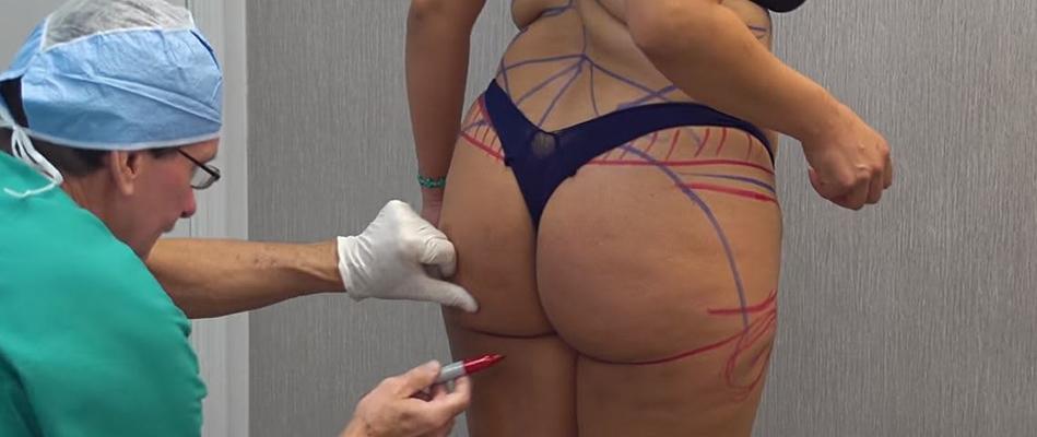 Nâng mông nội soi tại Venus đảm bảo an toàn