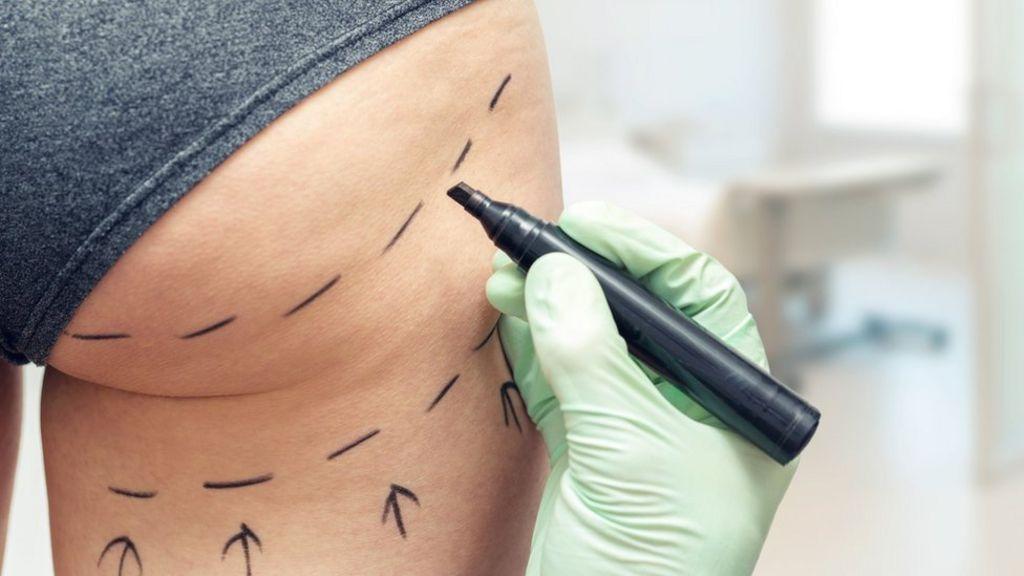 Nâng mông nội soi có nguy hiểm không cần dựa vào đội ngũ các bác sĩ thực hiện