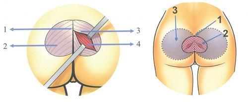 Nâng mông nội soi được bao lâu?