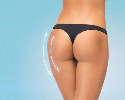 Lựa chọn bác sĩ uy tín thì hiệu quả và độ bền sau khi nâng mông sẽ tốt hơn