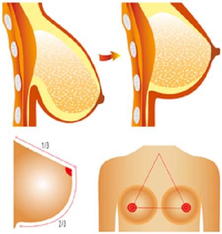 Treo ngực sa trễ bằng chỉ là phương pháp khắc phục tình trạng ngực chảy xệ