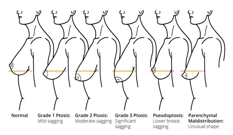Những đối tượng có thể áp dụng nâng ngực sa trễ không đặt túi