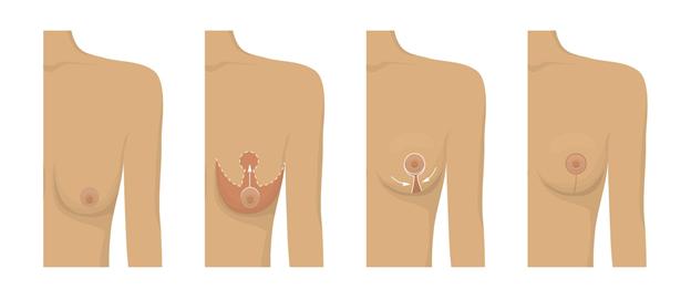 Phương pháp Nâng ngực này có an toàn không?