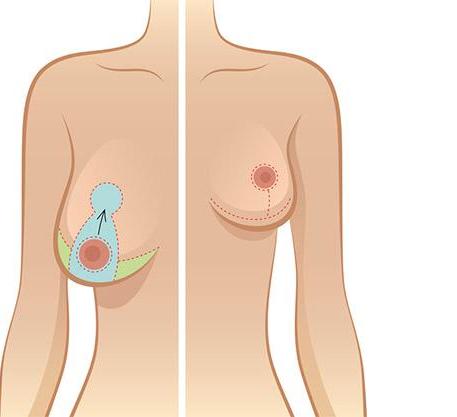 Hiệu quả của nâng ngực sa trễ bằng chỉ tại Venus by Asian