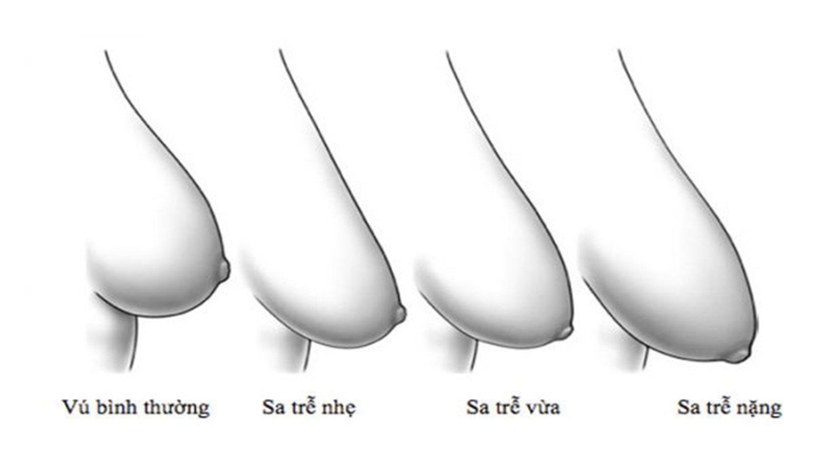 Các mức độ ngực sa trễ