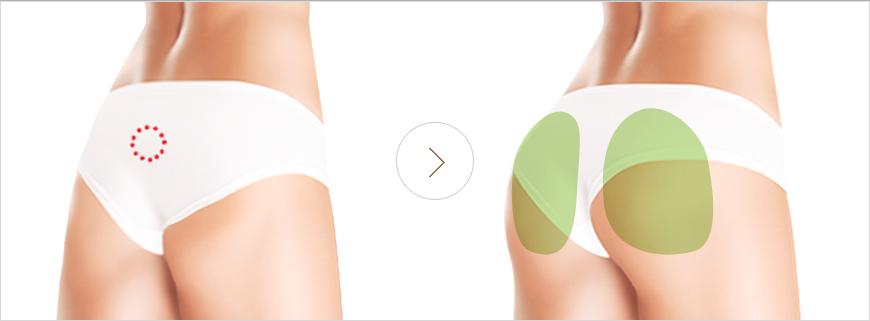 Nâng vòng 3 khắc phục các khuyến điểm ở mông, giúp bạn có vòng mông như ý