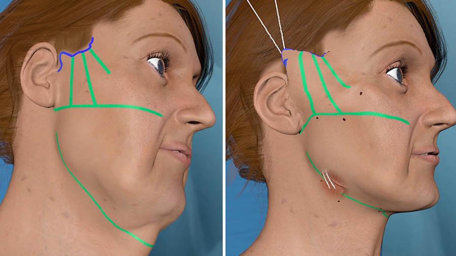 Lựa chọn địa chỉ uy tín, đội ngũ bác sĩ uy tín để đảm bảo quá trình phẫu thuật an toàn