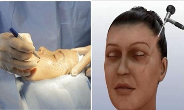 Phương pháp phẫu thuật căng da mặt có thể khiến bệnh nhân đau nhức sau khi hết thuốc tê