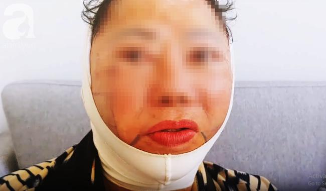 Các biến chứng có thể xảy ra trong quá trình phẫu thuật căng da mặt