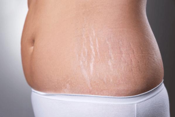 Những vết rạn nứt da khi mang thai mà phụ nữ gặp phải
