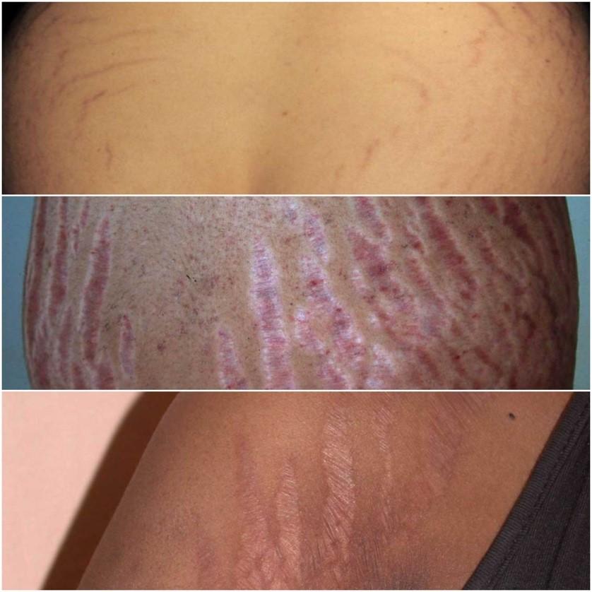 Rạn da mông khi mang thai và cách điều trị hiệu quả