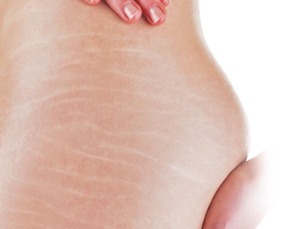 Đối tượng bị rạn da mông khi đang mang thai