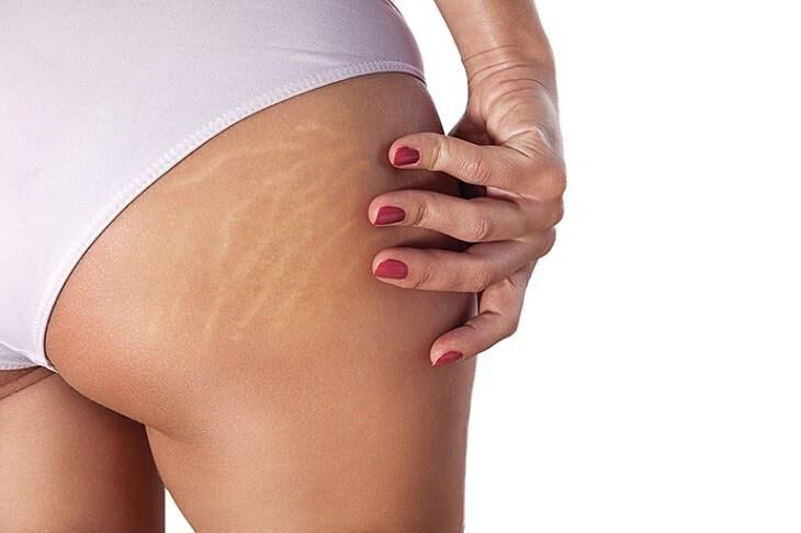 Tăng cân nhanh khiến da bị kéo căng và xuất hiện vết rạn da