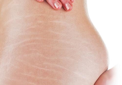 Sử dụng mỹ phẩm có chứa corticosteroid sẽ khiến da bị bào mòn