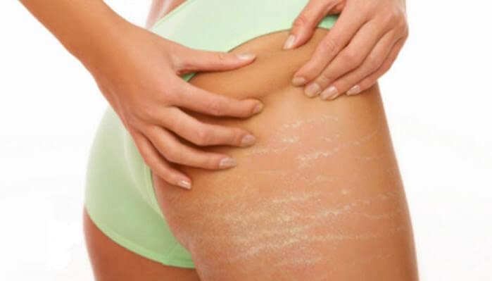 Laser Ultra Pulse khắc phục hoàn toàn những vết rạn da mông