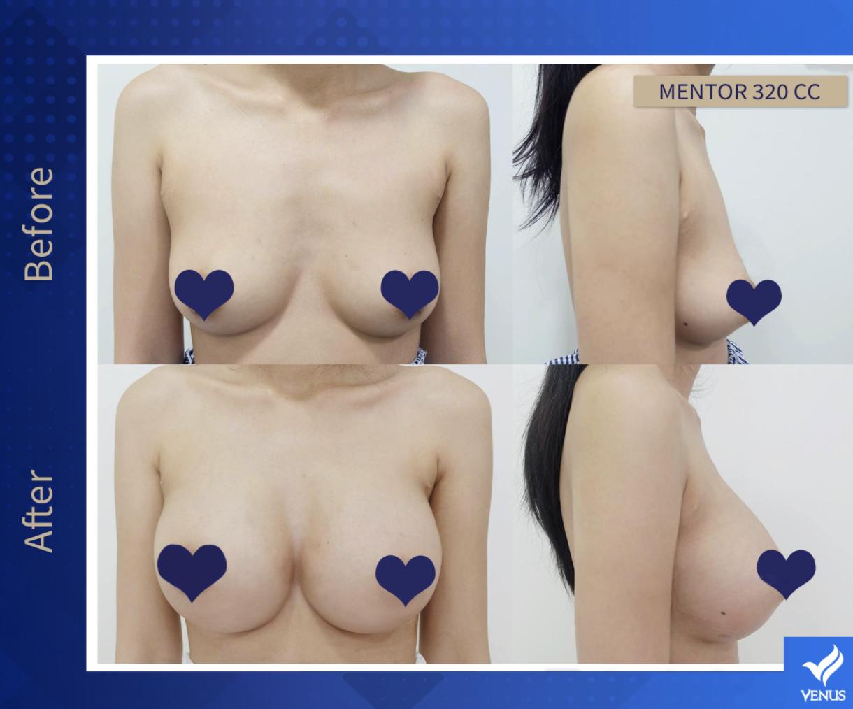 Hình ảnh khách hàng sau khi thực hiện treo ngực sa trễ tại Venus