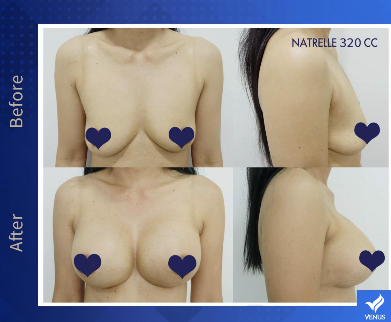Thực hiện treo ngực giúp phái đẹp sở hữu vòng 1 tự tin
