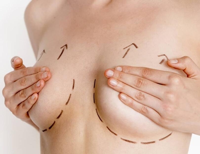 Treo ngực sa trễ có nguy hiểm không?