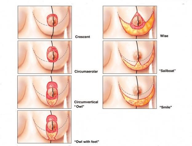 Thực hiện phẫu thuật treo ngực sa trễ có thể gây đau